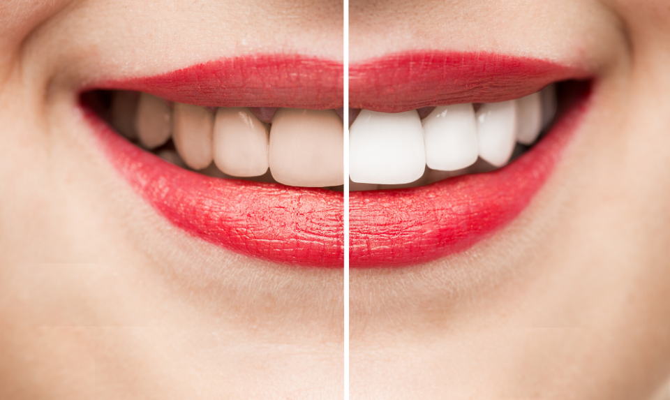 effective tooth whitening