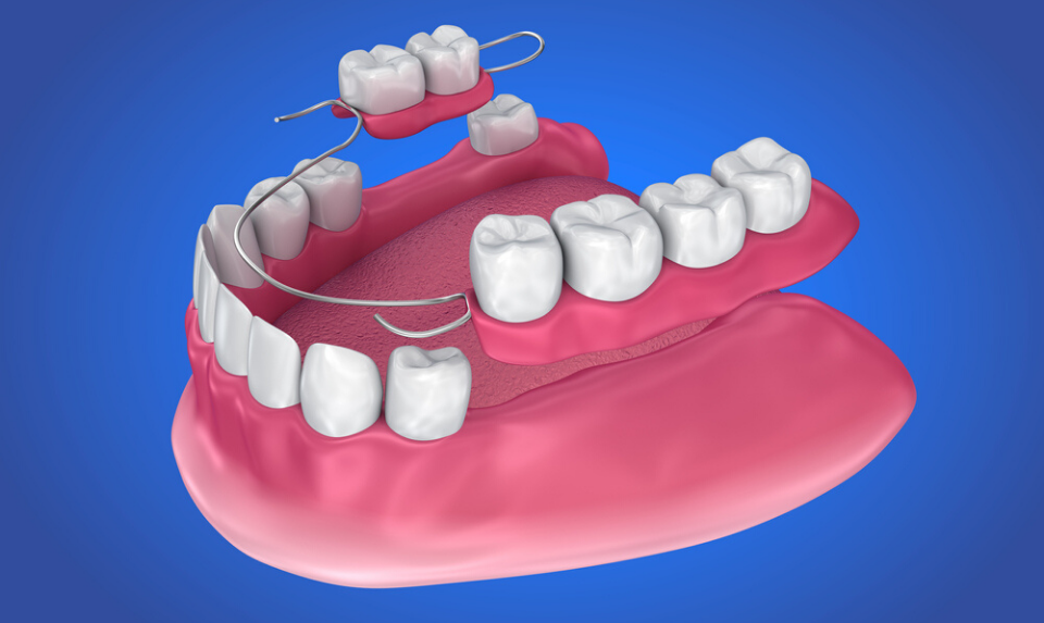 partial dentures illustration