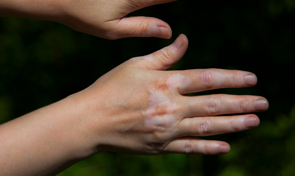 Vitiligo In Kids All You Need To Know About It Health Watch
